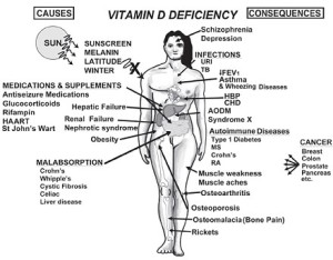 Vitamin D sources and effects with depletion